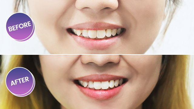 Smile Bar Philippines Teeth Whitening Review