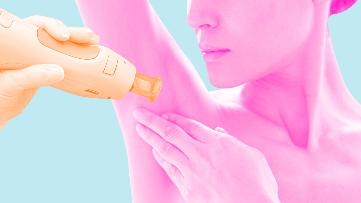 Where To Get Underarm Laser Hair Removal In Manila Philippines
