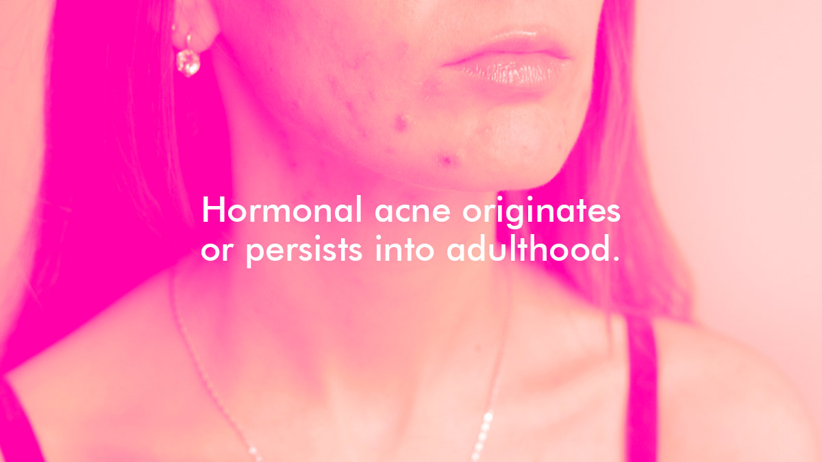 How To Treat Pcos Related Acne
