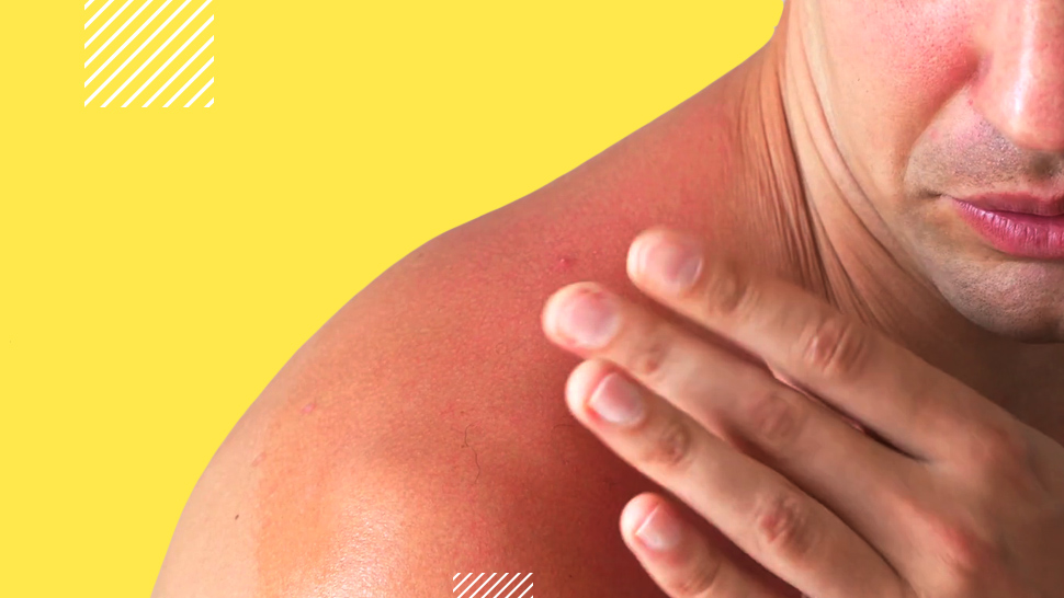 Philippines is 8th Lowest Country on Skin Cancer Index