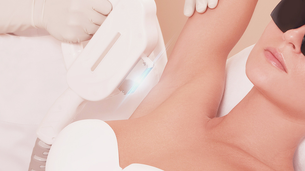 Laser Hair Removal Philippines