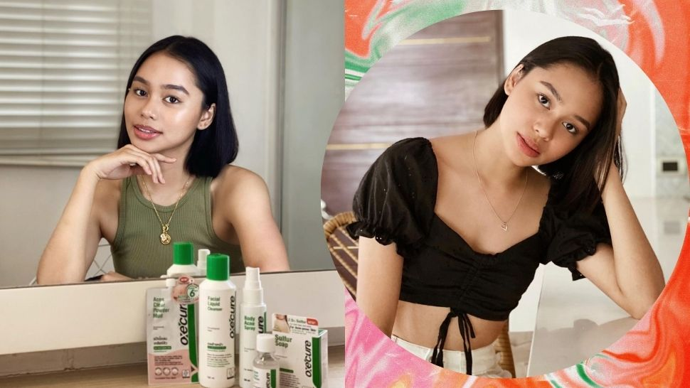 How Simplifying Her Skincare Routine Helped Bella Racelis Address Acne Breakouts