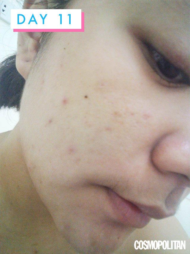 Centellian 24 Madeca Derma Cream Review Philippines