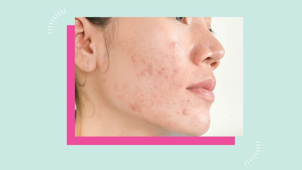 Acne Scars Remedy and Treatment