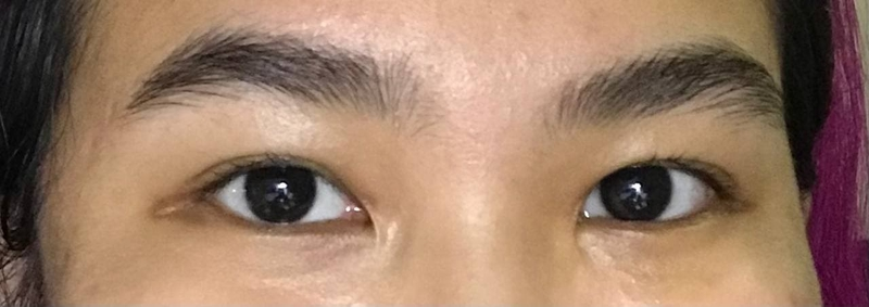 Before brow lamination