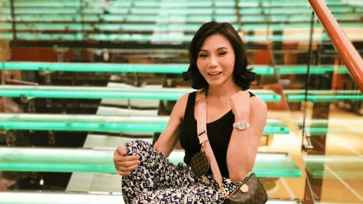 Vicki Belo On People Becoming More Open About Plastic Surgery