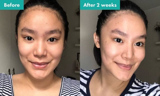 The before and after comparison of Jan Dolalas' use of Hello Glow's Advanced Rejuvenating Set