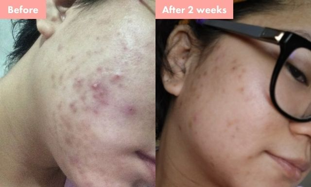 A before use and 2-week after use comparison of Rae Nopuente after using Hello Glow's All-Natural Whitening Set