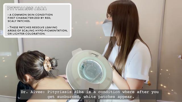 Doctor Aivee Teo explaining pityriasis alba to celebrity patient, Kathryn Bernardo.