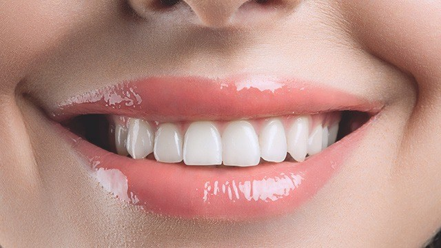 Kết quả hình ảnh cho How porcelain teeth are black glazed overcome teeth