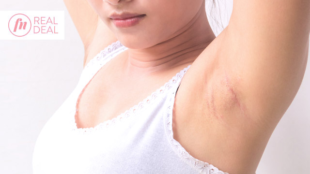 Places To Get An Underarm Whitening Treatment