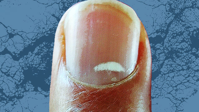 What Are Those White Spots On Your Nails?