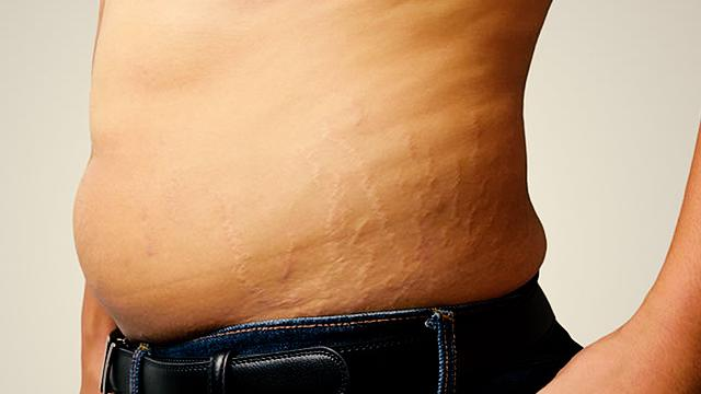 Can You Still Get Rid Of Weight Loss Stretch Marks?