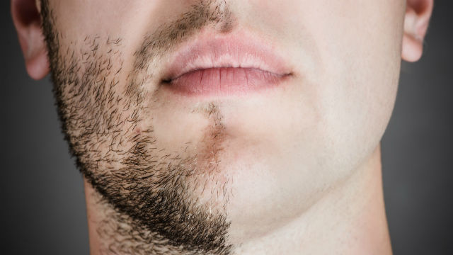 Why Can't All Men Grow Full Beards?