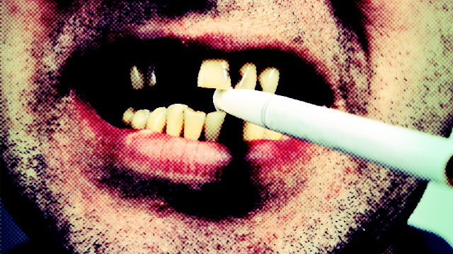 How Does Smoking Damage Teeth?
