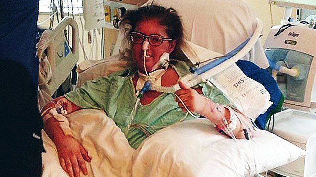 Lungless Woman Lives For 6 Days, Survives Operation