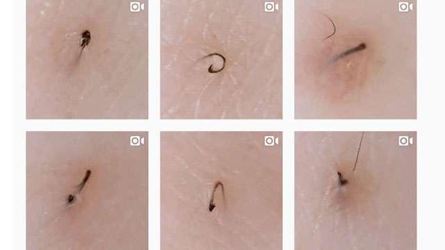 This Instagram Account Glorifies Gross Ingrown Hair Removal