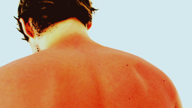 Fend Off These Common Summer Ailments With A Little Help From The DOH
