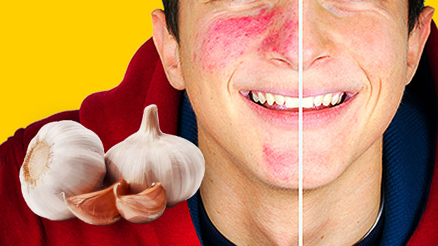 How To Get Rid Of Pimples With Raw Garlic