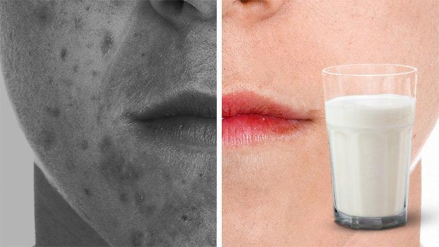Full-Fat Milk Can Fight Acne, Study Finds