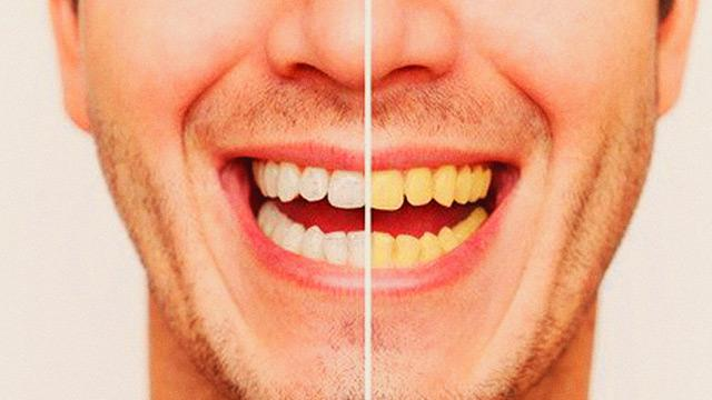 What To Avoid To Prevent Your Teeth From Turning Yellow