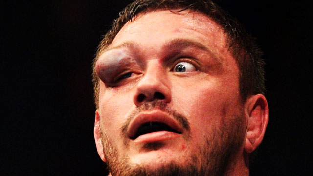 LOOK: UFC Fighter Suffers Gruesome Eye Injury