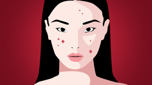 5 Different Types Of Acne And How To Treat Them