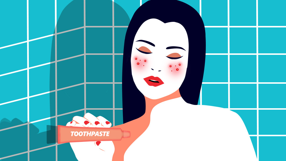Is Toothpaste Really An Effective Cure For Pimples?