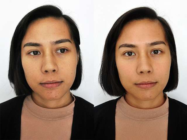 We Tried A Beauty Drip For Better Skin And This Is What Happened