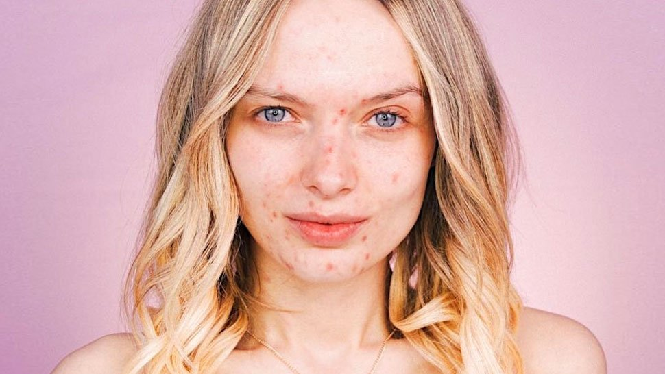 Lotd: This Beauty Vlogger Doesn't Care What You Think About Her Acne