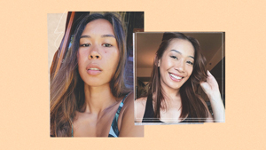 These 20-something Pinays Tried Injectable Treatments For Fine Lines