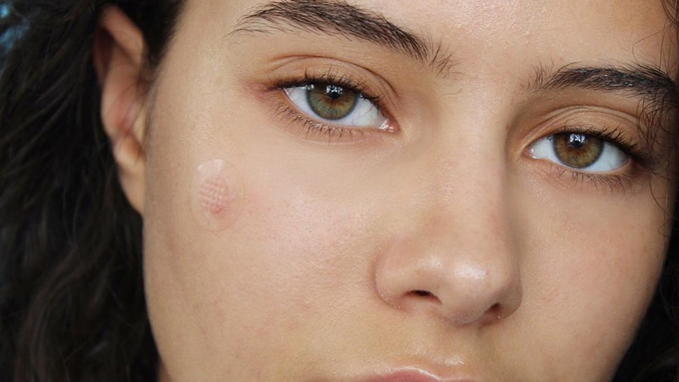 What Are Pimple Patches And What Do They Really Do For Your Acne?