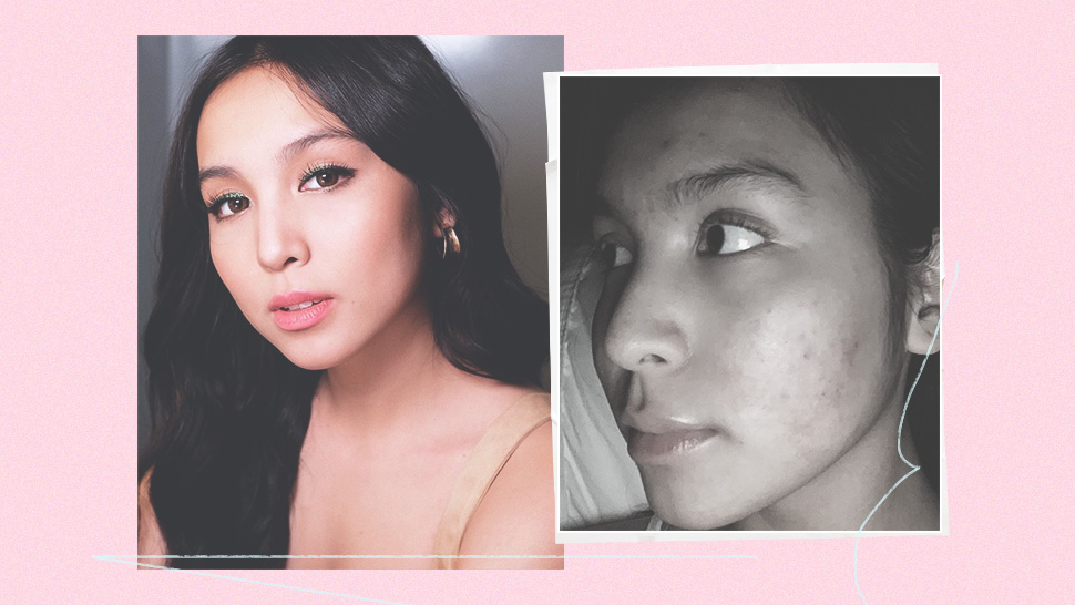 Kyline Alcantara Opens Up About Her Past Struggle with Acne
