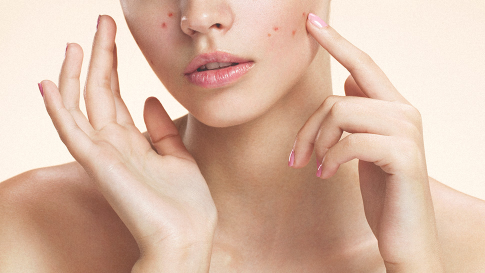 These Are the Main Causes of Acne, According to a Dermatologist