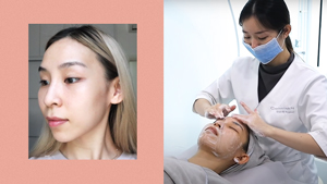 Here's What It's Like To Get A P30,000 Korean Glass Skin Facial