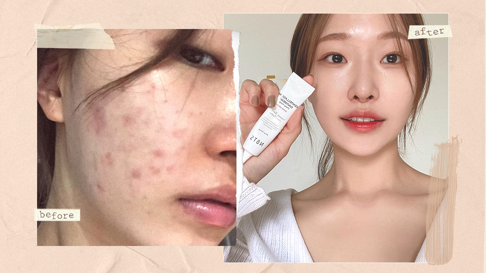 How to Get Glass Skin If You're Acne-Prone, According to a Korean Makeup Artist