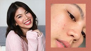 Janina Vela Reminds Us That Acne And Enlarged Pores Are Completely Normal