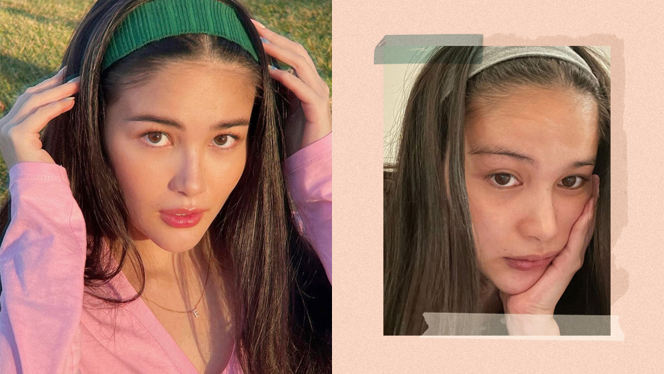 "Elisse Joson Posts No-makeup Selfie To Prove That ""bad Skin"" Days Are Normal"