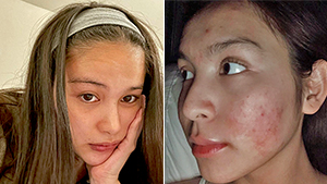 """6 Local Celebrities Who Got Real About Their """"bad Skin"""" Days"""