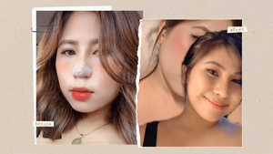Filipino Netizens Are Showing Off Their Nose Jobs Online And The Results Are Jaw-dropping