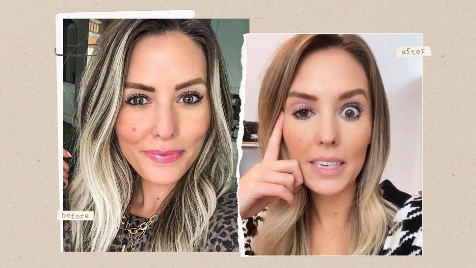 This Influencer Had a Bad Botox Experience and She Documented Everything on Social Media