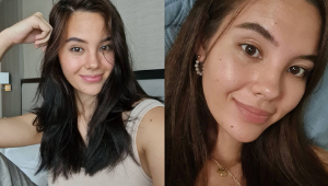 Catriona Gray's Barefaced Selfies Are Proof That Pores And Spots Are Totally Normal