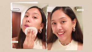 Here's How A Morena Does Her Anti-acne Skincare Routine For Dry Skin
