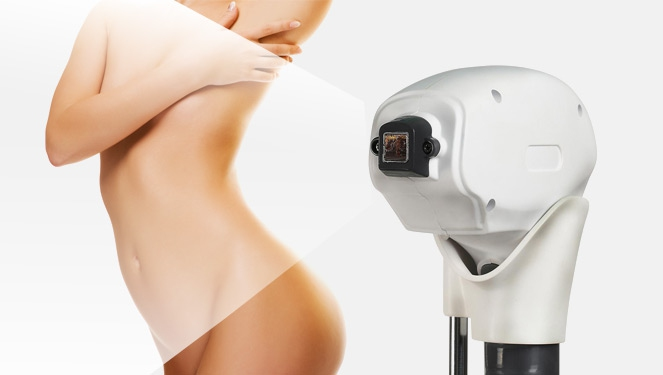 What You Need To Know About Diode Laser Hair Removal
