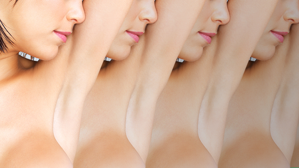The Pits: 4 Easy Solutions to Whiter Underarms