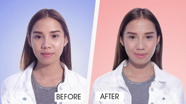 FROM OUR PARTNERS AT SKINSTATION: Here's How You Can Get a Nose Job