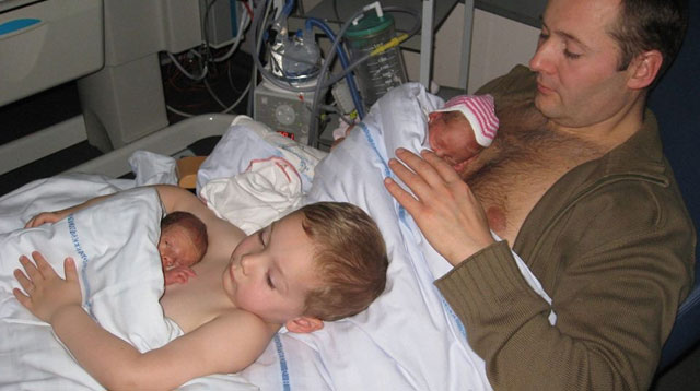Skin-to-Skin Contact Saves Lives, As This Viral Photo of Preemies Proves