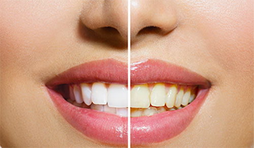 Shinagawa teeth whitening