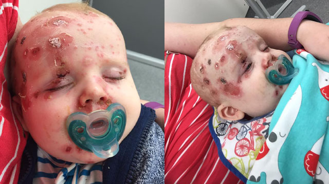 Mom Shares Heartbreaking Photos of Son to Urge Parents to Vaccinate Their Kids