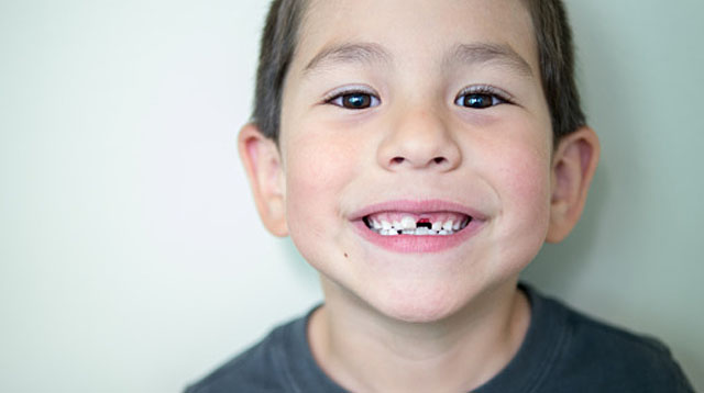 5 Things You Should Know When Your 6-Year-Old Loses His Baby Teeth